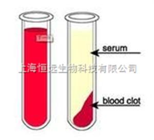 人血清(AB血型)