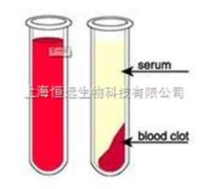 GIBCO人血清(混合血型)