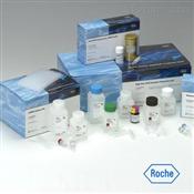 人抗神经胶质纤维酸性蛋白(GFAP)自身抗体ELISA试剂盒